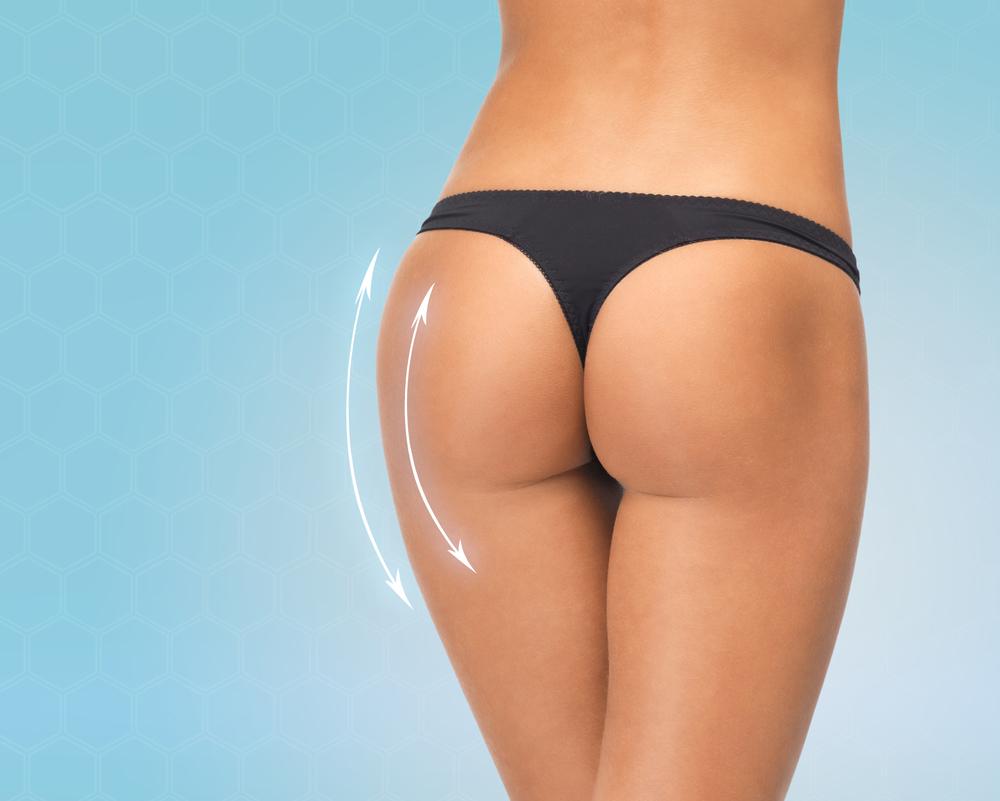 Brazilian buttlift uten noe kunstig implantat